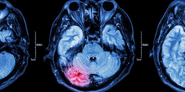 Brain Injury MRI after an accident in a personal injury claim